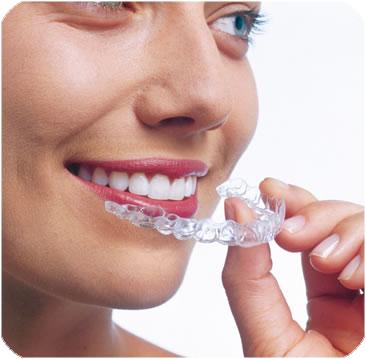 Ortoncia Invisible Invisalign en Villafranca Dental