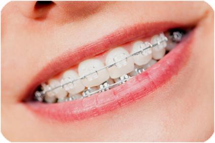 Brackets ortodoncia dentista villafranca del castillo