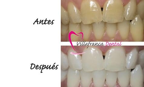 Blanqueamiento dental Villanueva de la Cañada