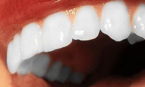 Estética dental Villanueva de la Cañada