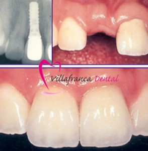 Implante dental en Villafranca del castillo, dentista villafranca dental