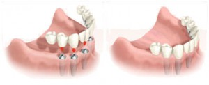 Implantes inmediatos dentista villafranca del castillo