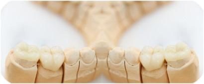 Prótesis dentales en dentista villafranca del castillo, villanueva del pardillo y villanueva de la cañada
