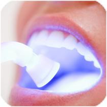 Blanqueamiento dental luz fria clinica dental en Villafaranca del Castillo y Majadahonda