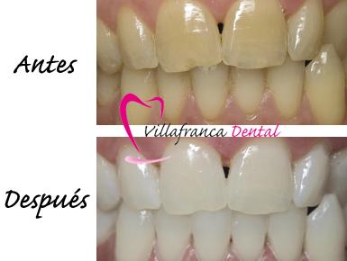 Blanqueamiento dental en clinica dental Villafranca del Castillo y Villanueva del Pardillo
