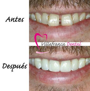 Carillas dentales en clínica Villafranca Dental