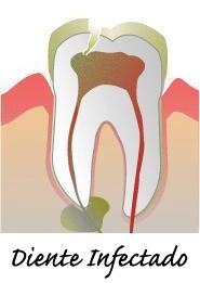 endodoncia diente infectado en villafranca del castillo madrid