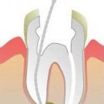 endodoncia se elimina el nervio infectado y se sellan los conductos radiculares en villafranca del castillo