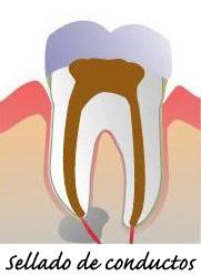 endodoncia se sella la pieza y se restaura diente en villafranca del castillo