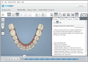 Estudio ortodoncia invisible Villanueva de la Cañada