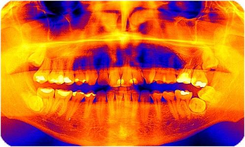 Radiología dental Radiografía Villanueva de la Cañada