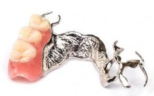 Prótesis sobre implantes y Puente Dental en Villanueva de la Cañada